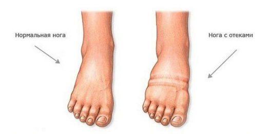 Отёк ноги