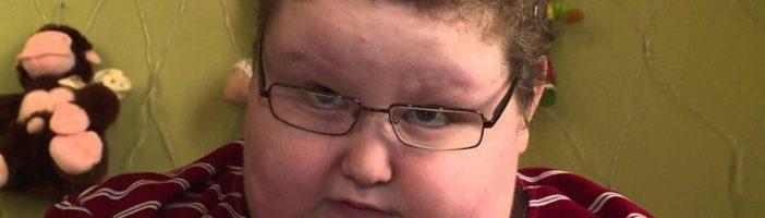 Ожирение при синдроме Прадера-Вилли