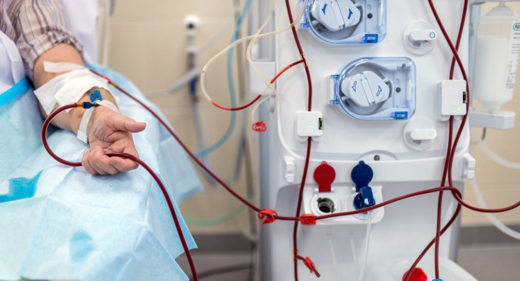 Пациент на гемодиализе
