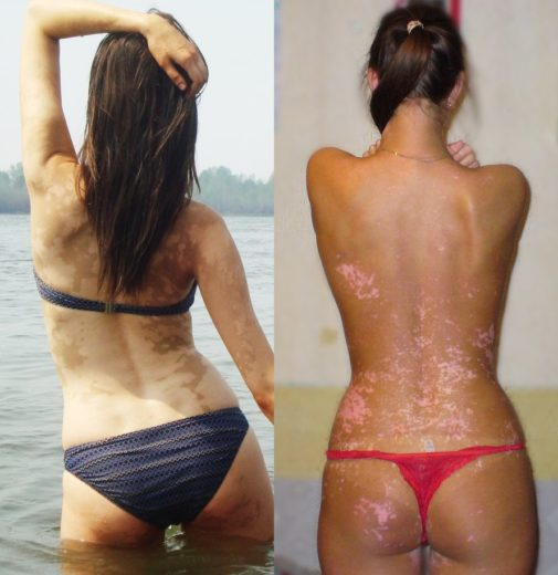 Пациентка до и после курса медикаментозного лечения витилиго