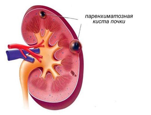 Паренхиматозная опухоль почки
