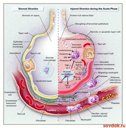 патогенез РДС