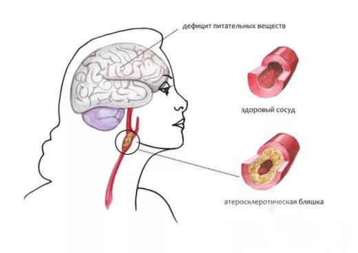 Патогенез развития атеросклероза