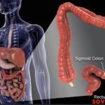 Наследственный  неполипозный  колоректальный  рак,  или  Синдром  Линча