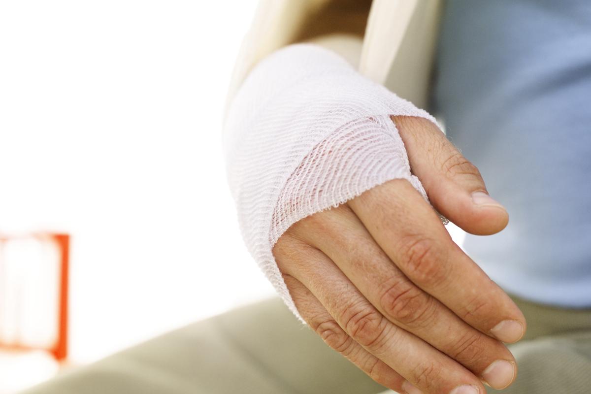 Вывих кистевого сустава руки — что это за травма и как её лечат