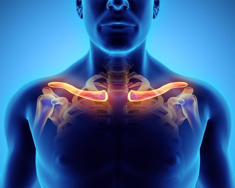 Перелом ключицы: каков план лечения?