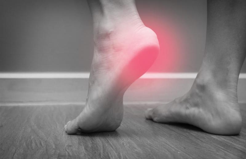 Перелом пятки: как восстановиться после травмы