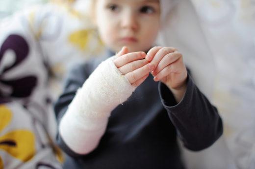 Перелом руки у ребёнка