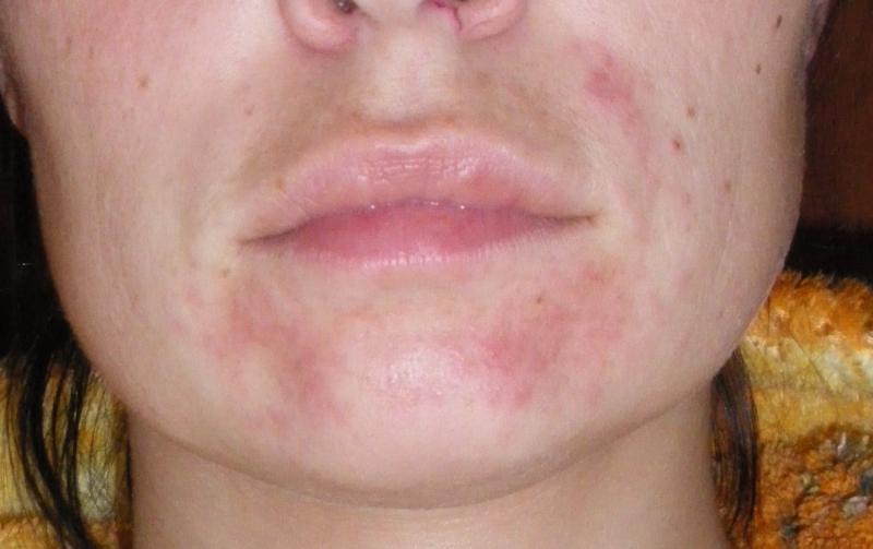 Периоральный дерматит — воспаление эпидермиса вокруг рта
