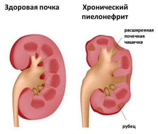 Изображение здоровой почки и поражённой хроническим пиелонефритом