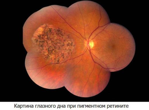 Пигментный ретинит