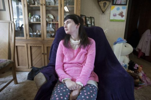 Женщина с синдромом Ретта