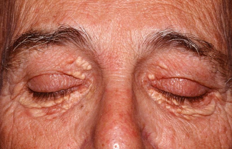 Ксантелазма — косметический дефект, заставляющий задуматься о здоровом образе жизни
