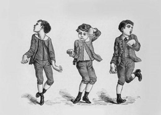 Мальчик с синдромом Гентингтона