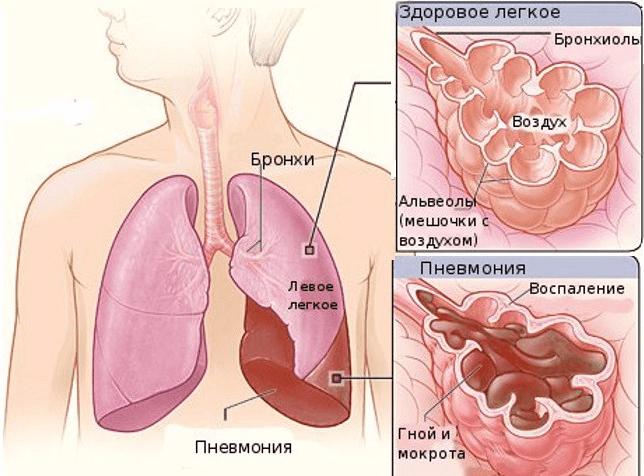 Как лечат воспаление легких в домашних условиях