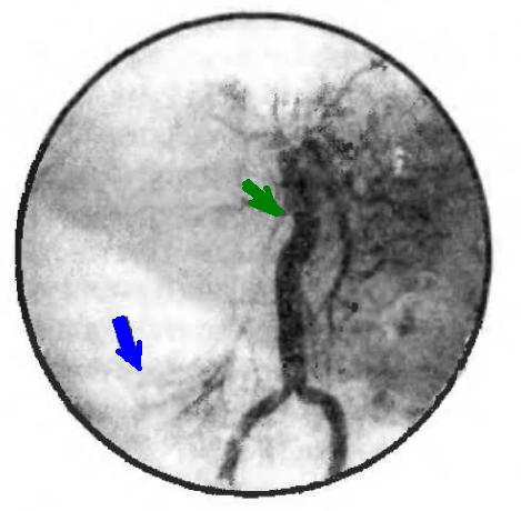 Почечная ангиограмма нефроптоза