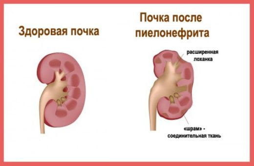 Почка здоровая и больная пиелонефритом