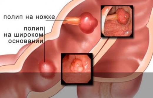 Лечение травм носа