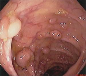 полипы толстого кишечника