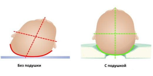 Положение головы ребёнка на ортопедической подушке и без неё