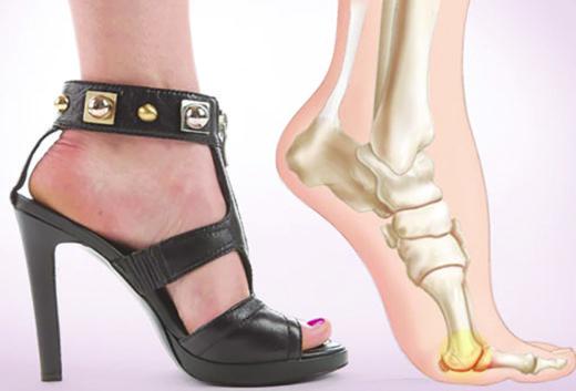 Положение стопы при ходьбе на каблуках