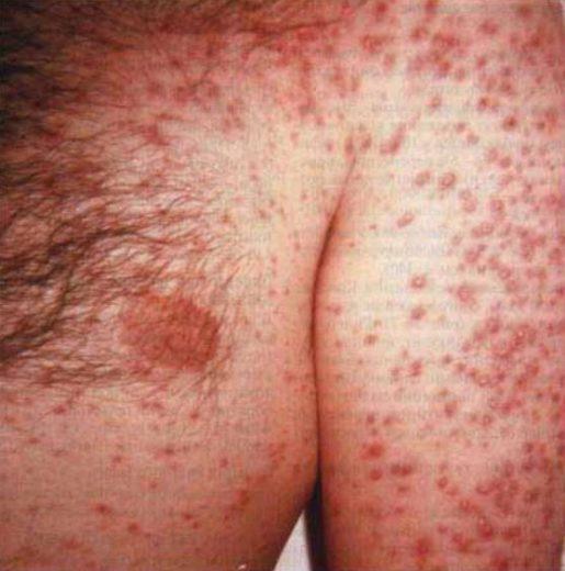 Поражение кожи при гистоплазмозе