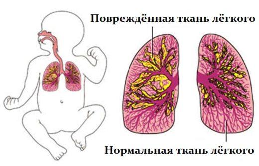 Поражения долей лёгкого при воспалении