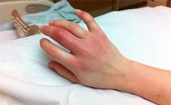 Рука с красными и припухшими пальцами