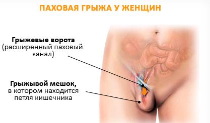 методы лечения паховой грыжи у мужчин
