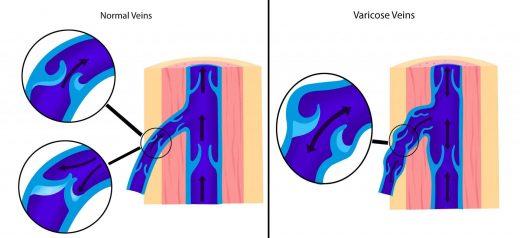 Клапанный аппарат вен в норме и при патологии
