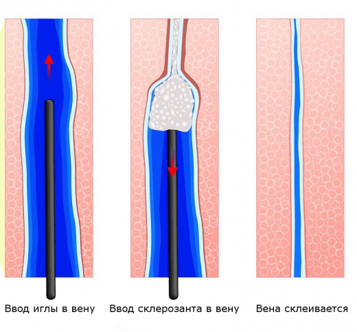 Склеротерапия на схеме