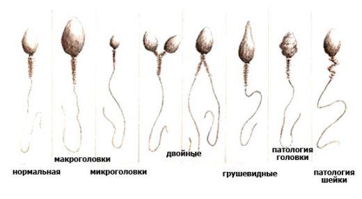 Аномалии строения сперматозоидов