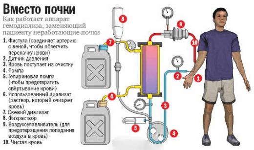 Схема работы «искусственной почки»