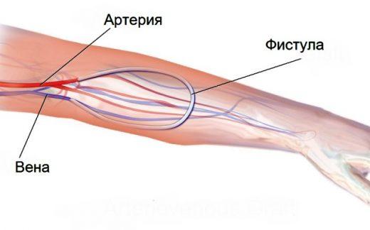 Артериовенозная фистула