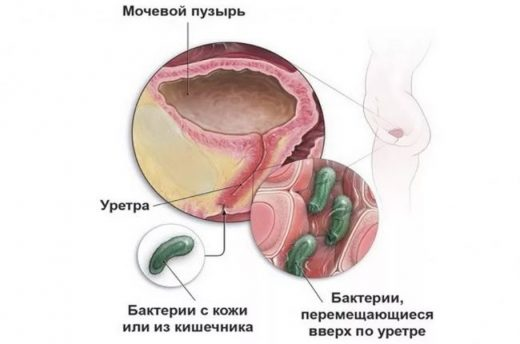 Бактерии перемещаются по уретре в мочевой пузырь