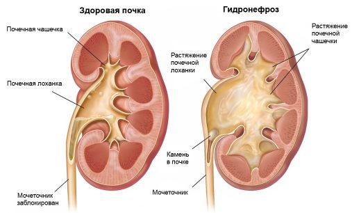Мочекаменная болезнь и гидронефроз