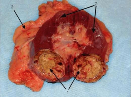 Почка с раковой опухолью в разрезе
