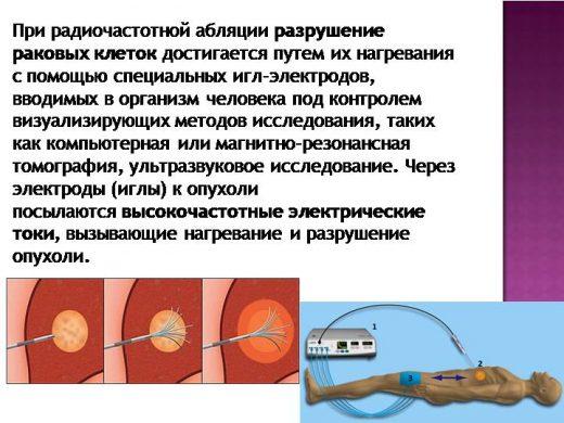 Радиочастотная абляция
