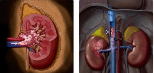 Опухолевые тромбы в почечных сосудах (схема)