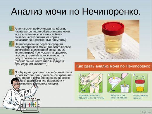 Как сдавать анализ мочи по Нечипоренко
