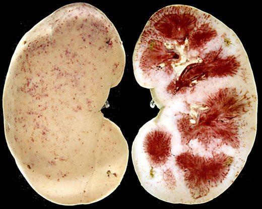 Как выглядит почка при хроническом тубулоинтерстициальном нефрите