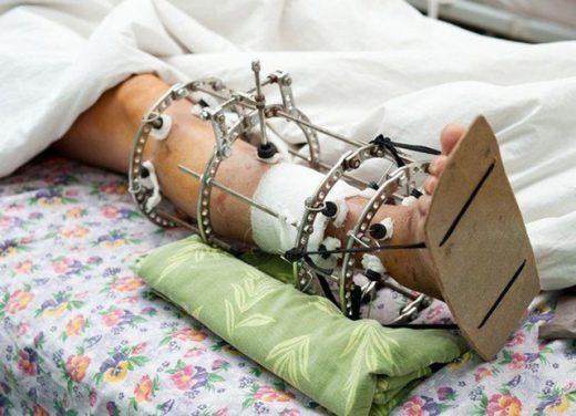 Исправление костных деформаций
