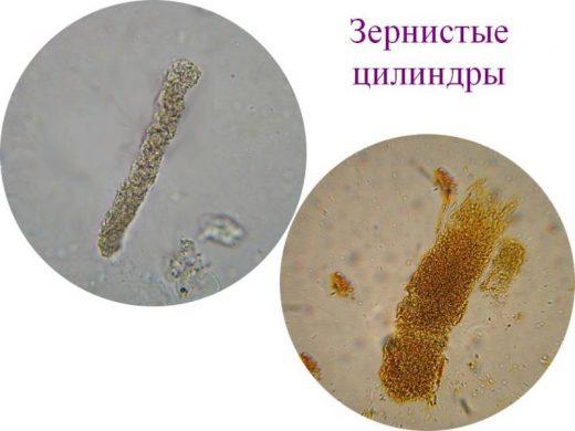 Зернистые цилиндры в осадке мочи (картина под микроскопом)