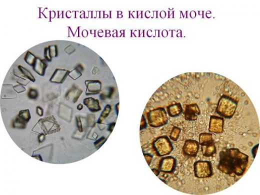 Ураты в осадке мочи (картина под микроскопом)