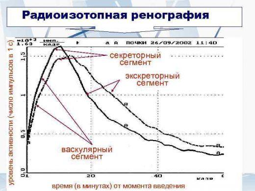 Радиоизотопная ренография (график)