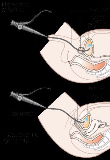 Цистоскопия