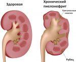 Хронический пиелонефрит