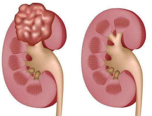 Злокачественная опухоль в почке