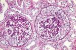 Подострый гломерулонефрит с полулуниями (картина под микроскопом)