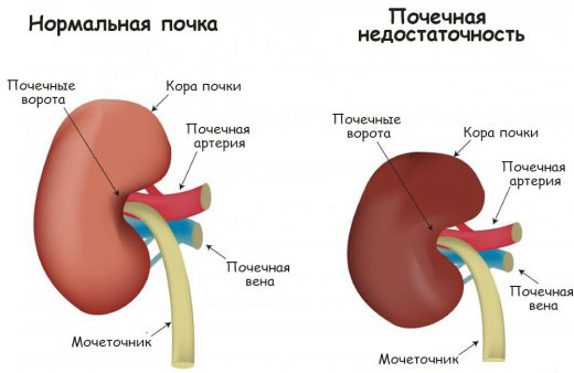 Нормальная почка и орган при почечной недостаточности
